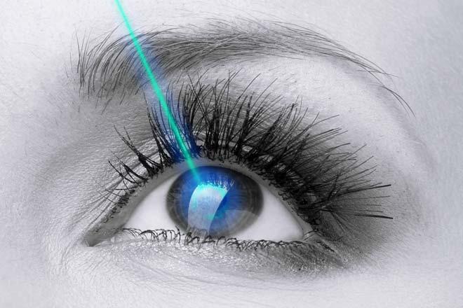 lasik laser